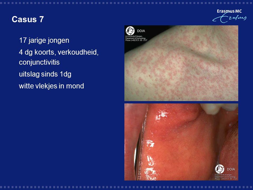 Casus 7 17 jarige jongen 4 dg koorts, verkoudheid, conjunctivitis