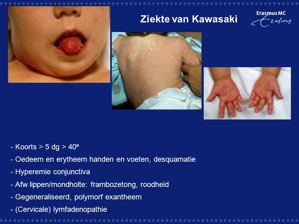 Ziekte van Kawasaki - Koorts > 5 dg > 40º