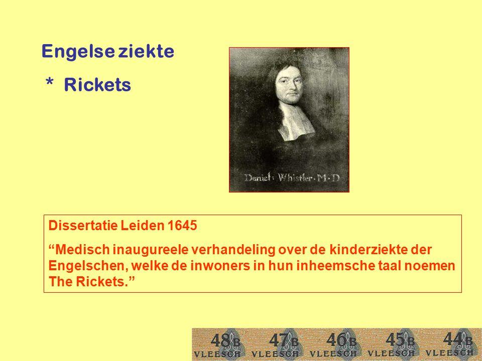 Engelse ziekte * Rickets Dissertatie Leiden 1645