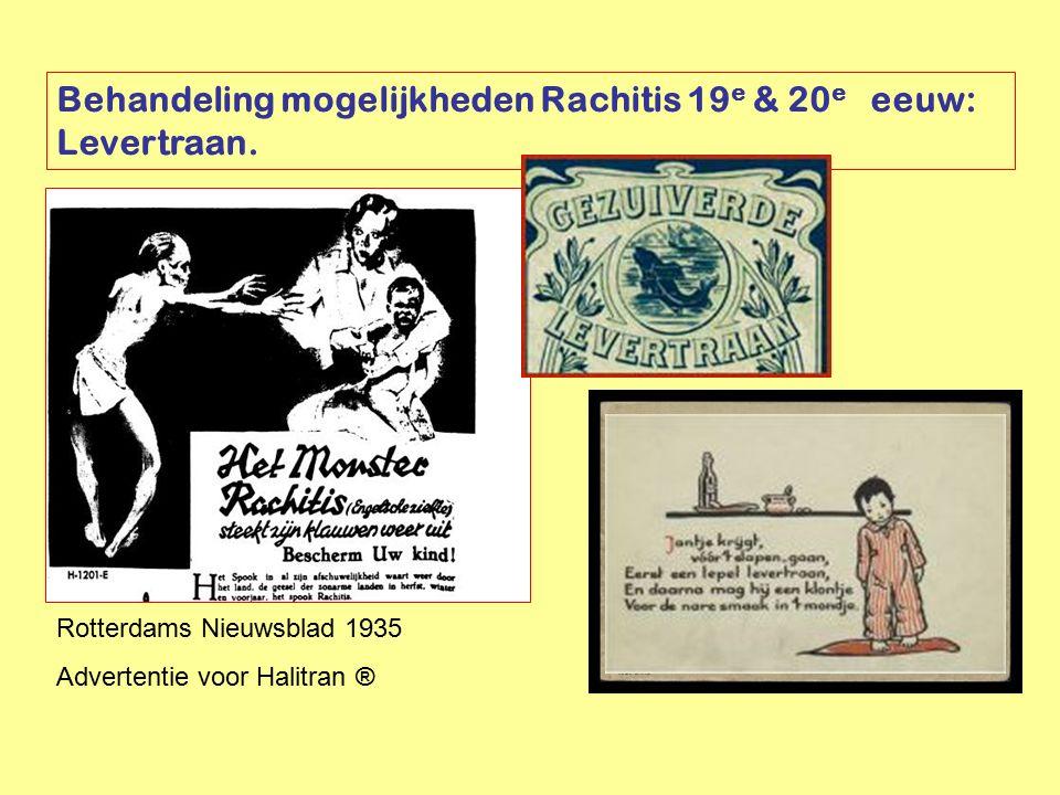 Behandeling mogelijkheden Rachitis 19e & 20e eeuw: Levertraan.