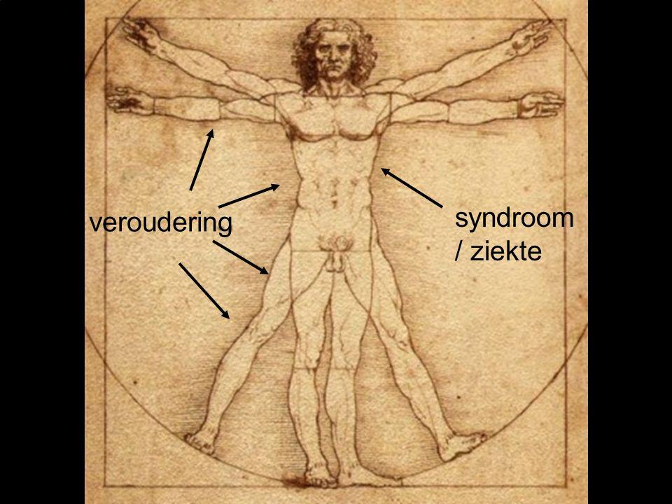 syndroom / ziekte veroudering