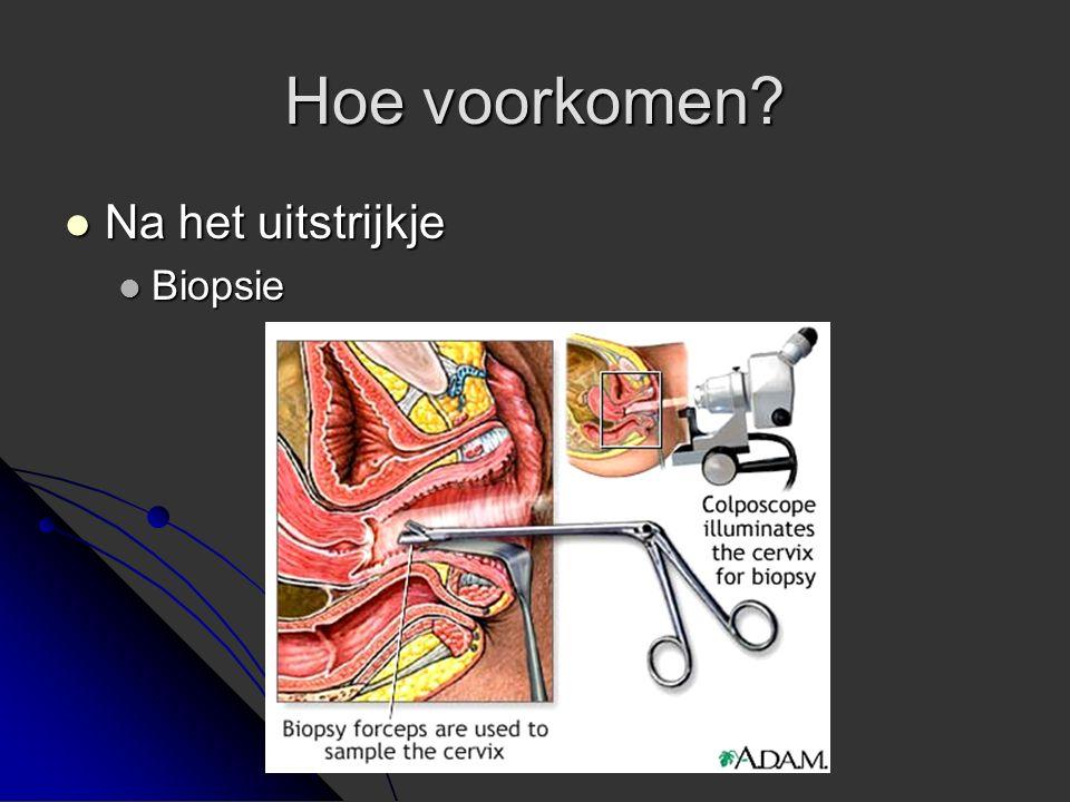 Hoe voorkomen Na het uitstrijkje Biopsie