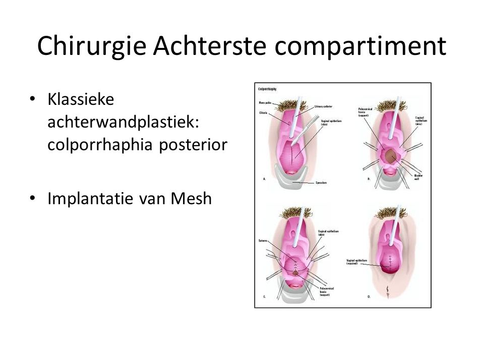 Chirurgie Achterste compartiment