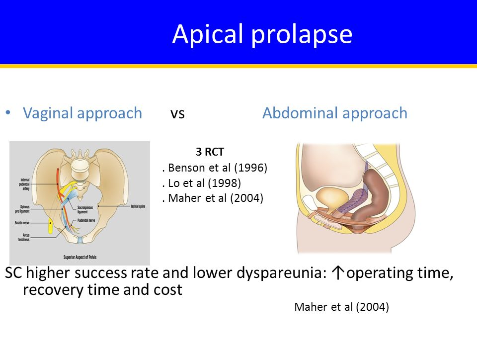 Apical prolapse Vaginal approach vs Abdominal approach 3 RCT