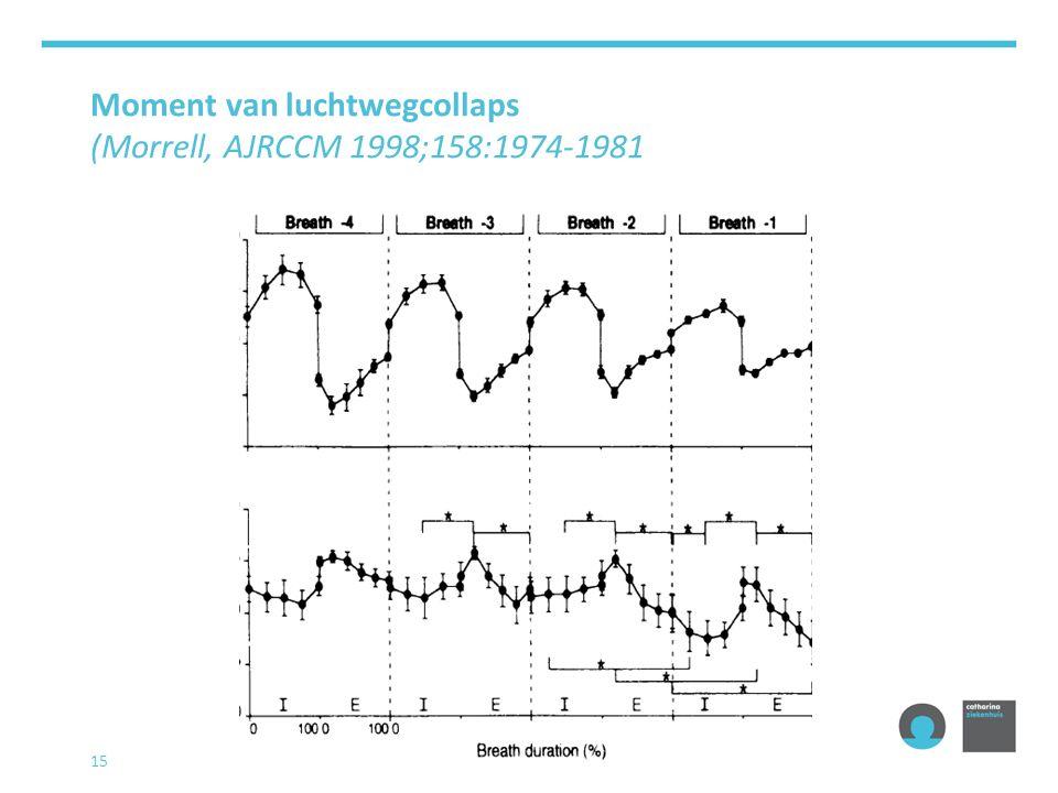 Moment van luchtwegcollaps (Morrell, AJRCCM 1998;158:1974-1981