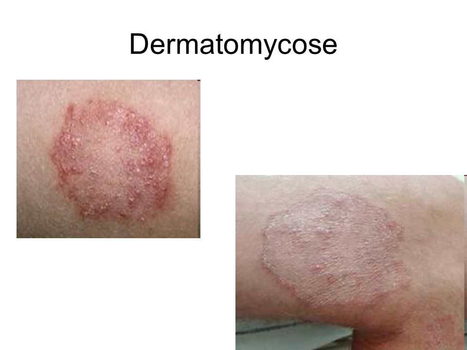 Dermatomycose 5