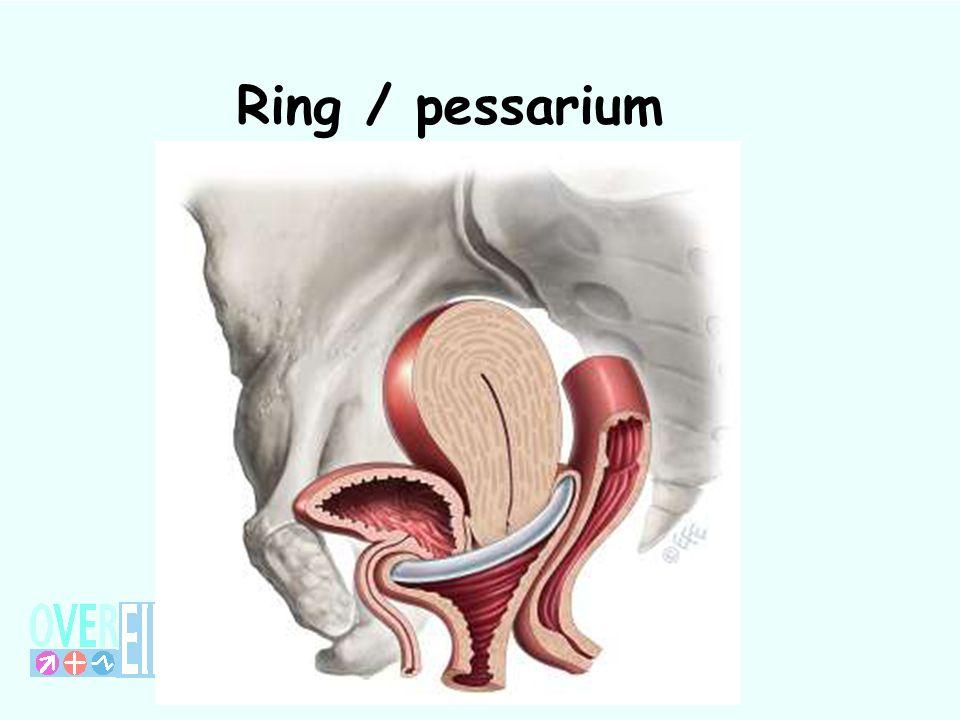 Ring / pessarium 73