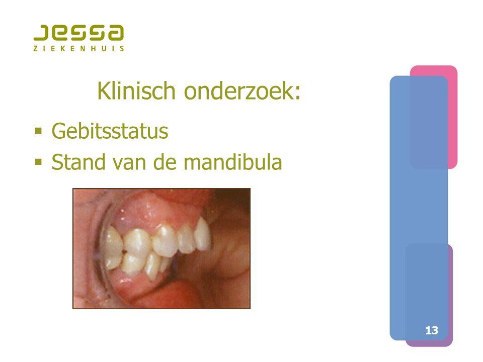Klinisch onderzoek: Gebitsstatus Stand van de mandibula