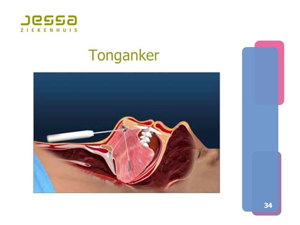 Tonganker