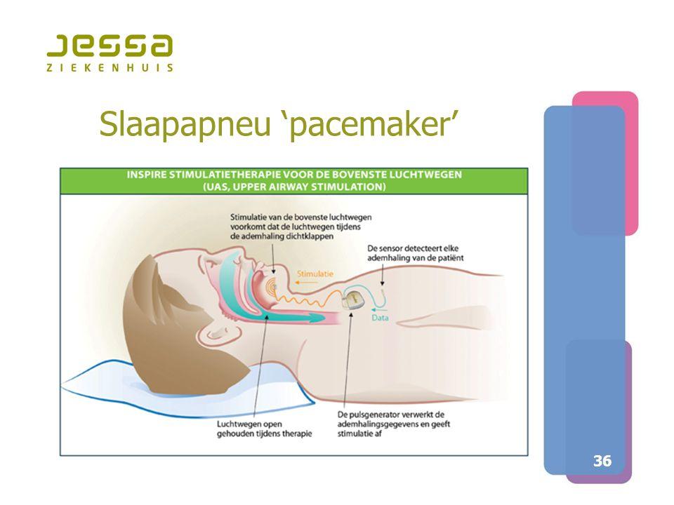 Slaapapneu 'pacemaker'