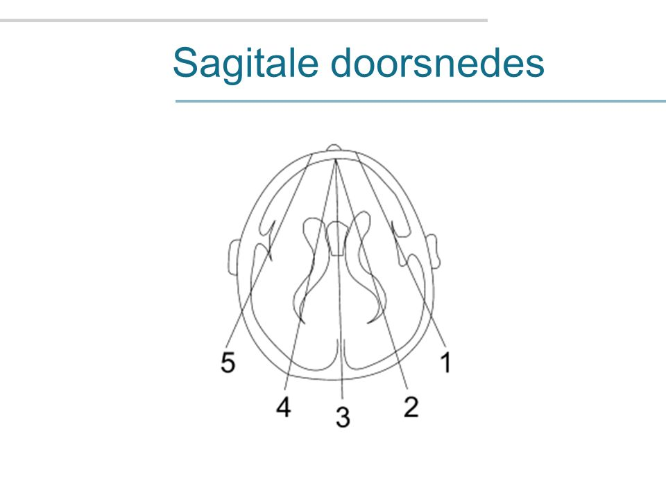 Sagitale doorsnedes