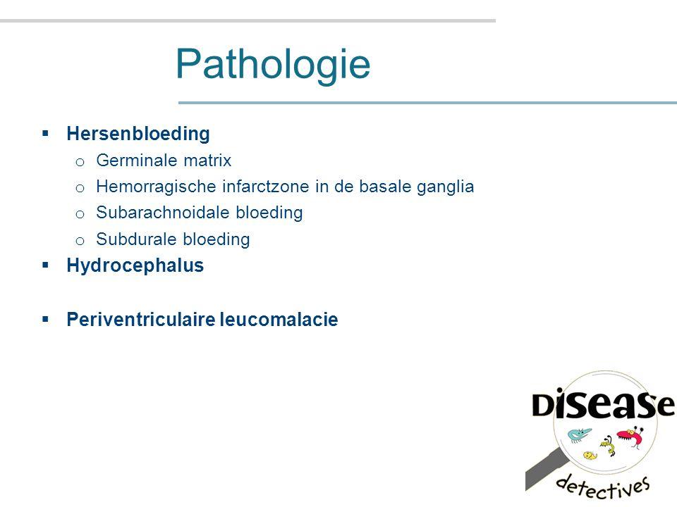 Pathologie Hersenbloeding Hydrocephalus Periventriculaire leucomalacie