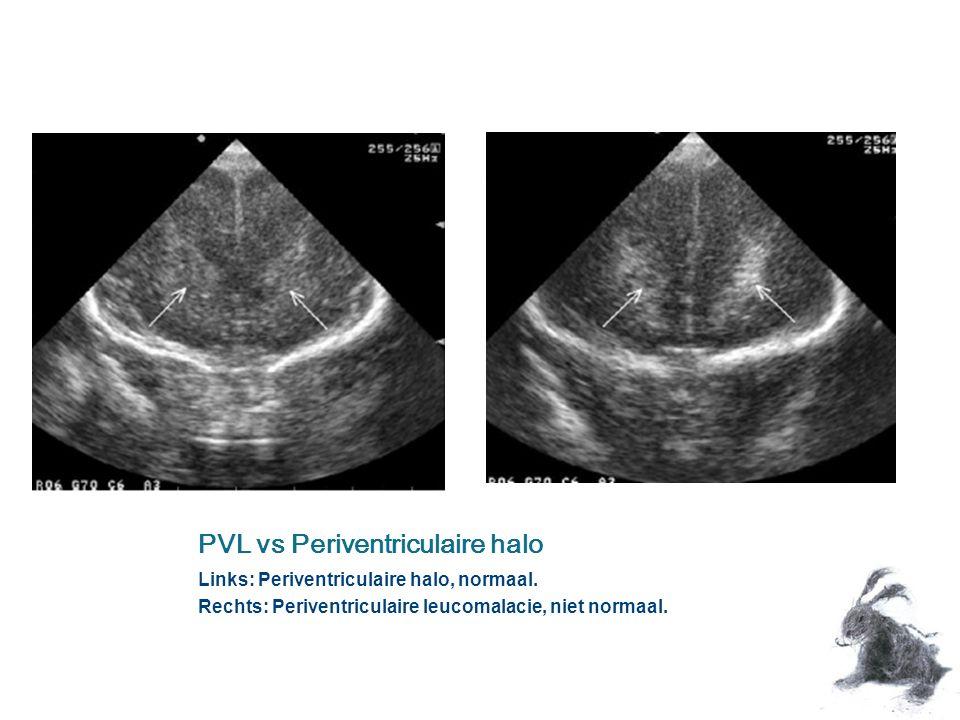 PVL vs Periventriculaire halo