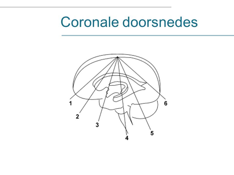 Coronale doorsnedes