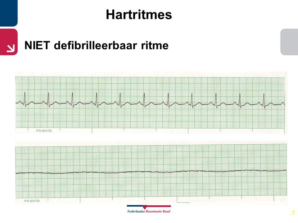 Hartritmes NIET defibrilleerbaar ritme 7 Stoppen reanimatie: