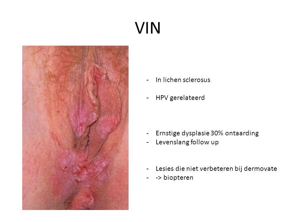 VIN In lichen sclerosus HPV gerelateerd