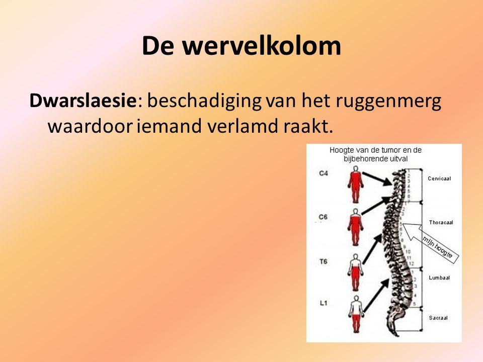 De wervelkolom Dwarslaesie: beschadiging van het ruggenmerg waardoor iemand verlamd raakt.