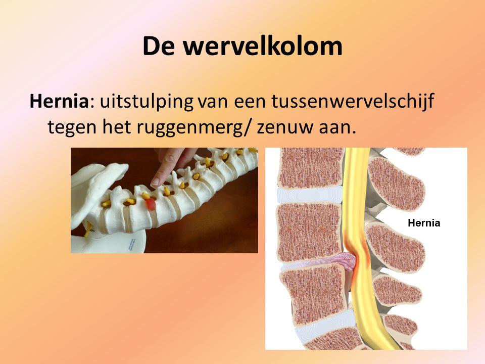 De wervelkolom Hernia: uitstulping van een tussenwervelschijf tegen het ruggenmerg/ zenuw aan.