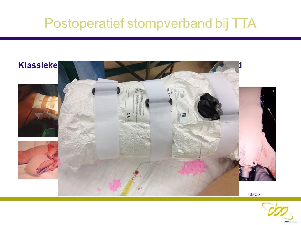 Postoperatief stompverband bij TTA