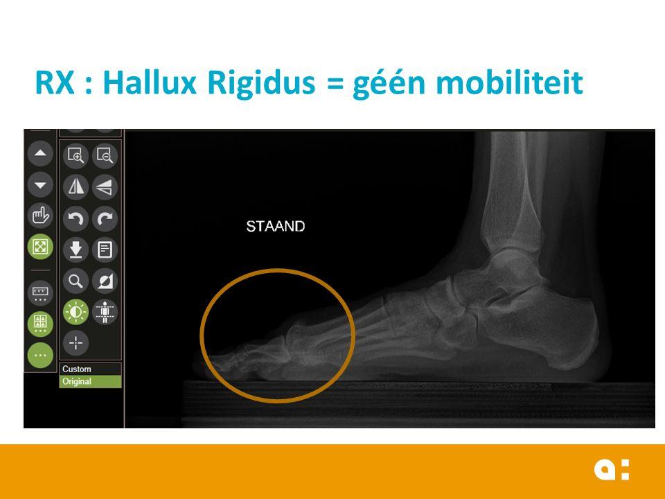 RX : Hallux Rigidus = géén mobiliteit
