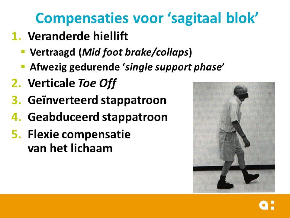Compensaties voor 'sagitaal blok'