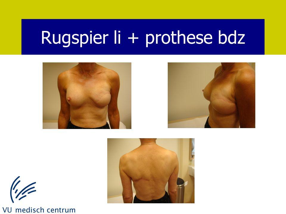 Rugspier li + prothese bdz