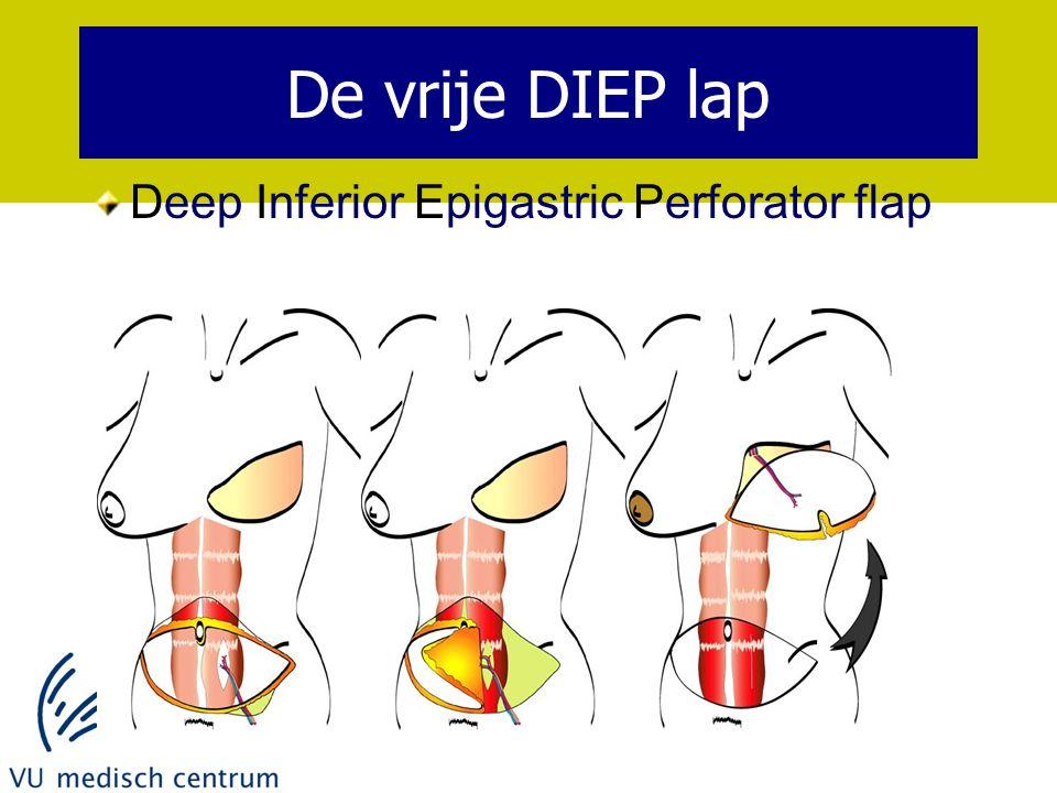 De vrije DIEP lap Deep Inferior Epigastric Perforator flap