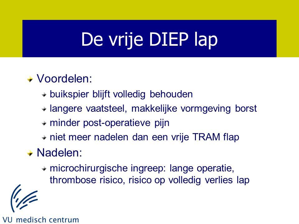 De vrije DIEP lap Voordelen: Nadelen: