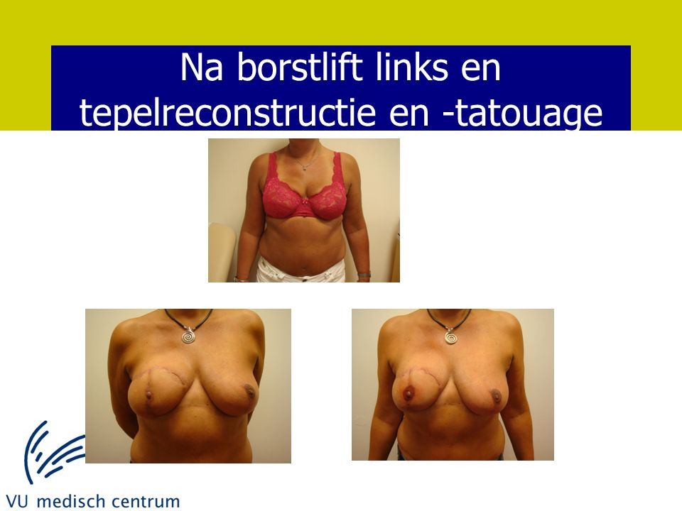 Na borstlift links en tepelreconstructie en -tatouage