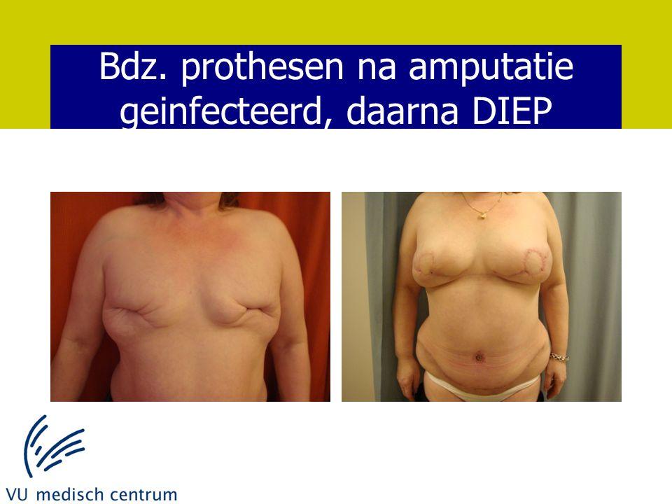 Bdz. prothesen na amputatie geinfecteerd, daarna DIEP