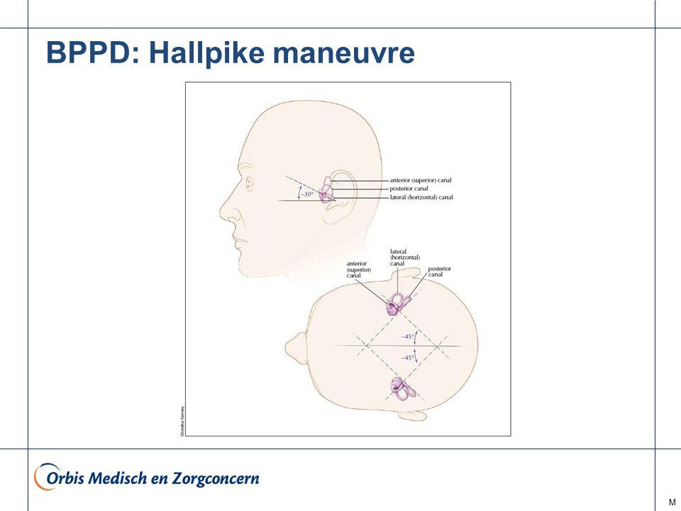 BPPD: Hallpike maneuvre