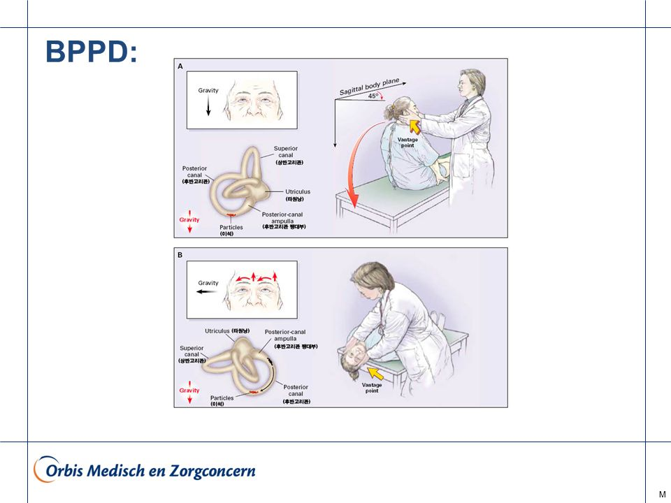 BPPD: M