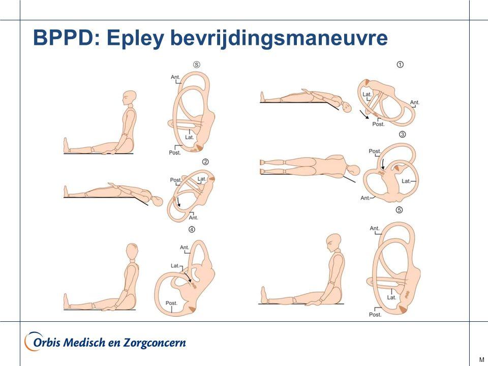 BPPD: Epley bevrijdingsmaneuvre