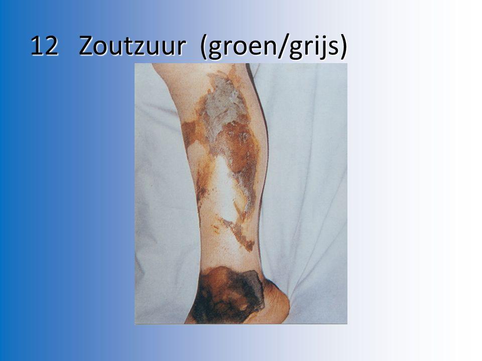 12 Zoutzuur (groen/grijs)