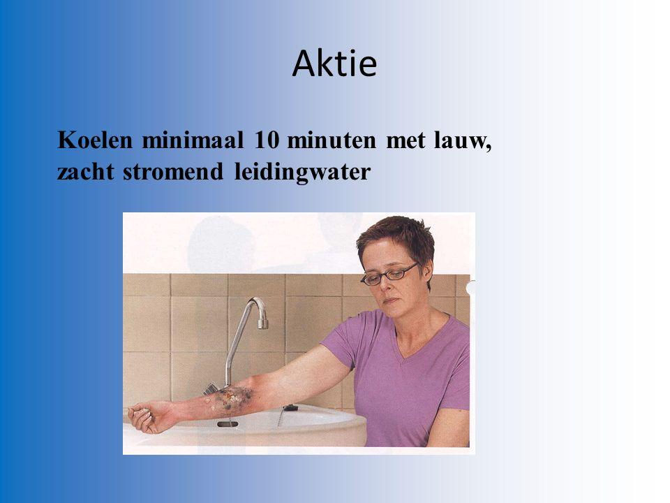 Aktie Koelen minimaal 10 minuten met lauw, zacht stromend leidingwater