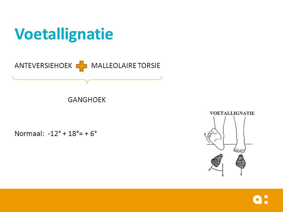 Voetallignatie ANTEVERSIEHOEK MALLEOLAIRE TORSIE GANGHOEK Normaal: -12° + 18°= + 6°
