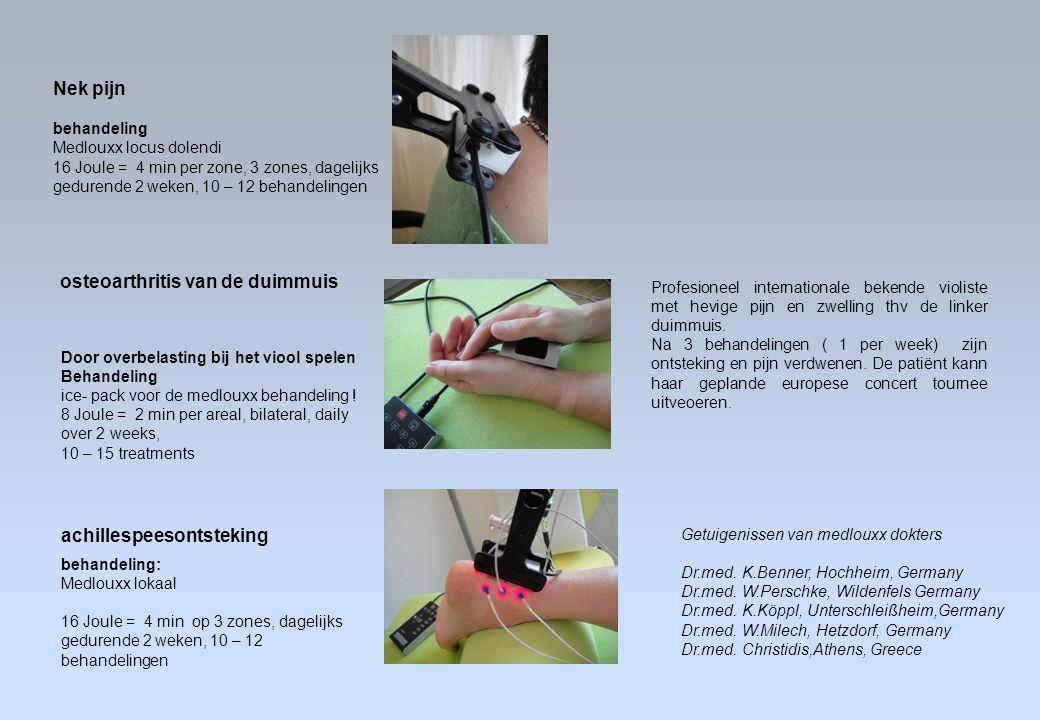 osteoarthritis van de duimmuis