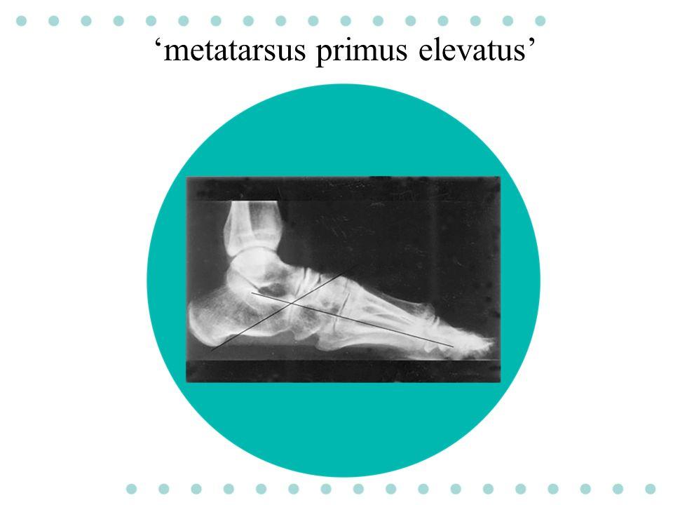 'metatarsus primus elevatus'