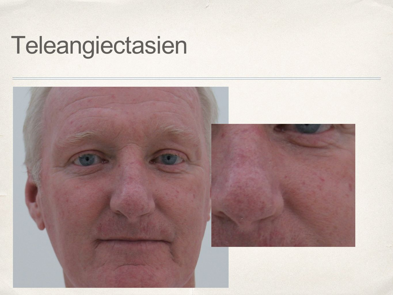 Teleangiectasien