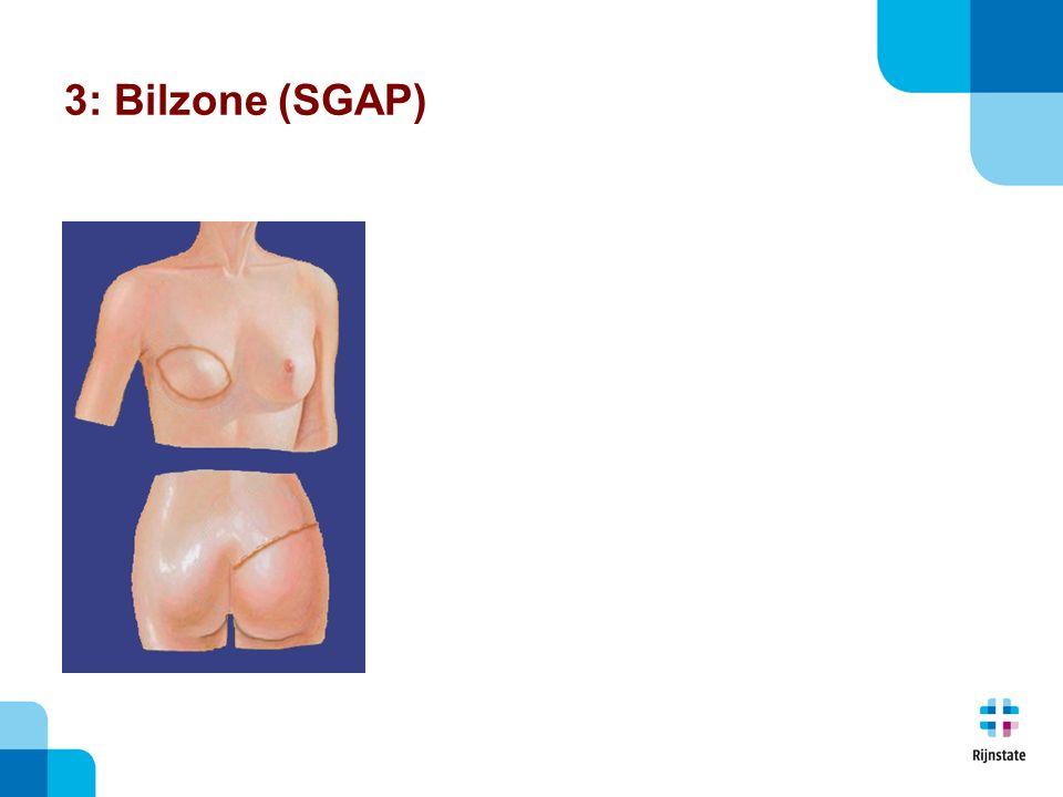3: Bilzone (SGAP)