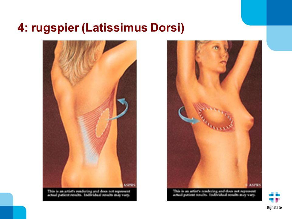 4: rugspier (Latissimus Dorsi)