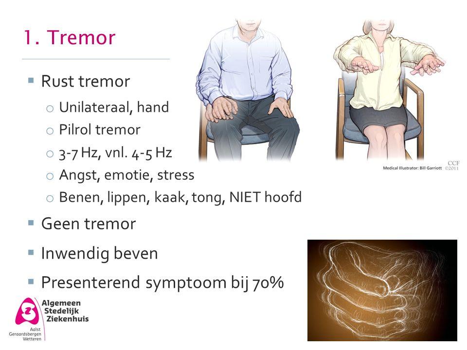 1. Tremor Rust tremor Geen tremor Inwendig beven