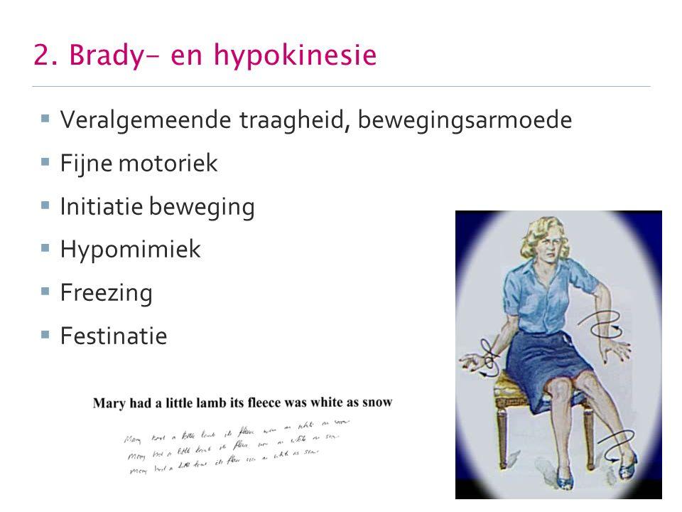 2. Brady- en hypokinesie Veralgemeende traagheid, bewegingsarmoede