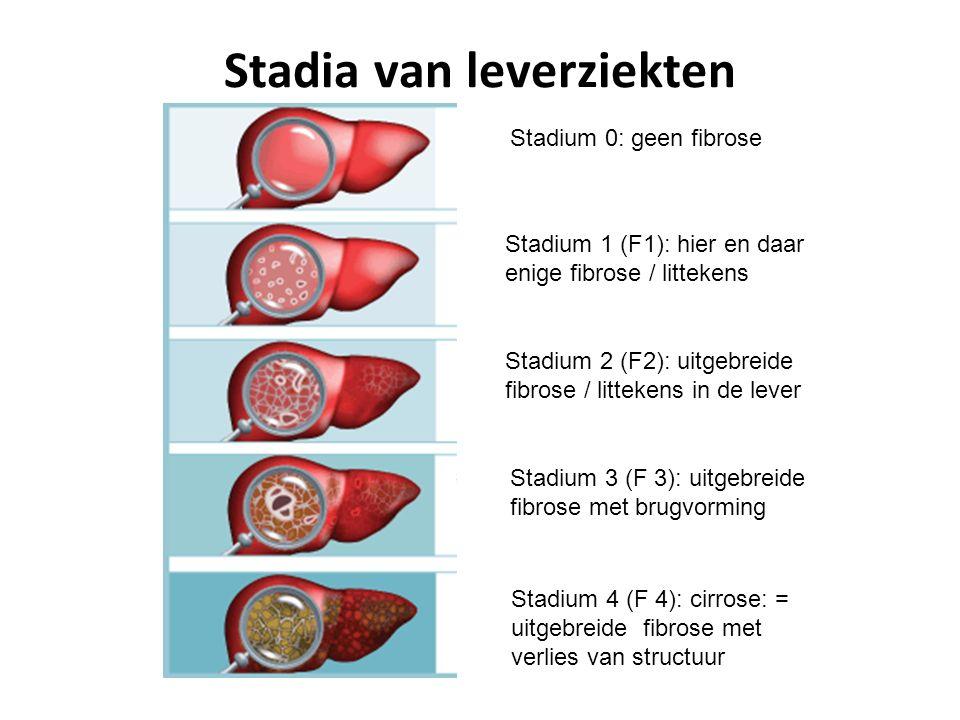Stadia van leverziekten