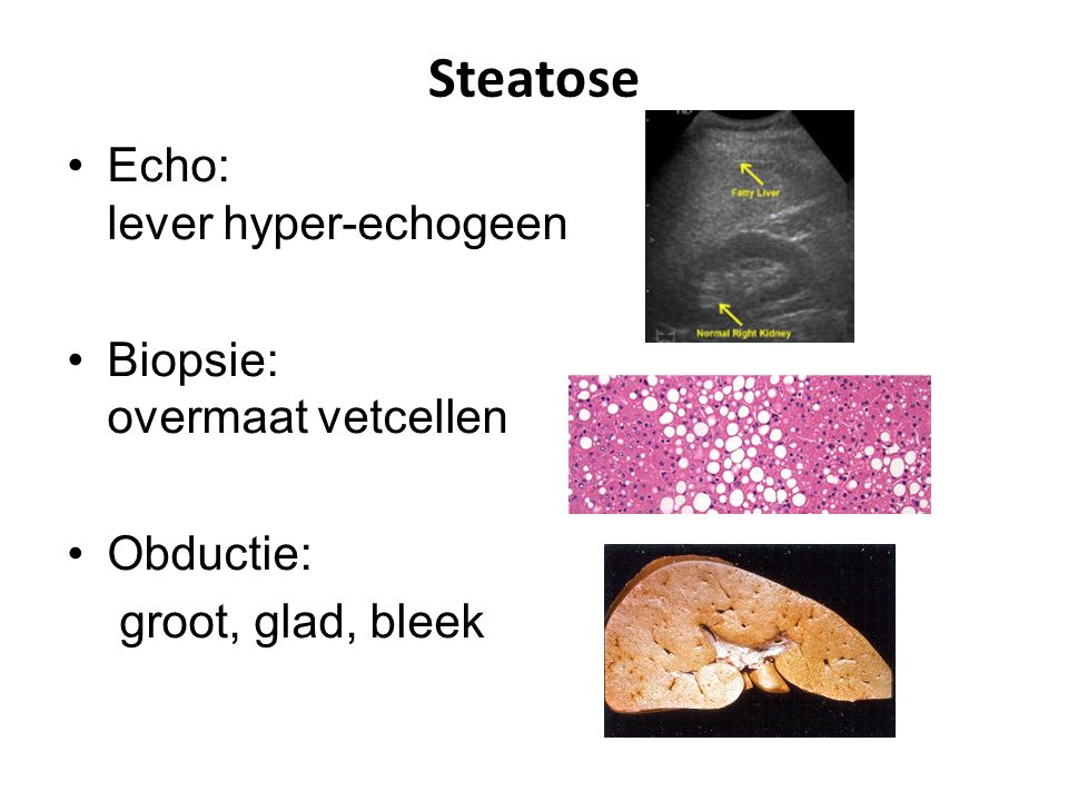Steatose Echo: lever hyper-echogeen Biopsie: overmaat vetcellen