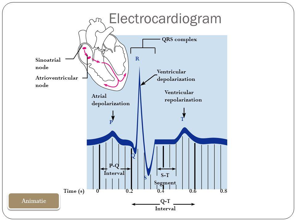 Electrocardiogram Animatie QRS complex Sinoatrial node R Ventricular