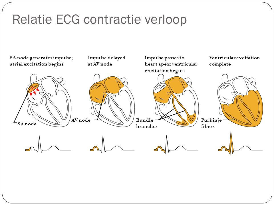 Relatie ECG contractie verloop