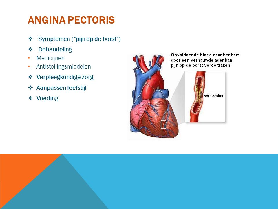 Angina pectoris Symptomen ( pijn op de borst ) Behandeling Medicijnen