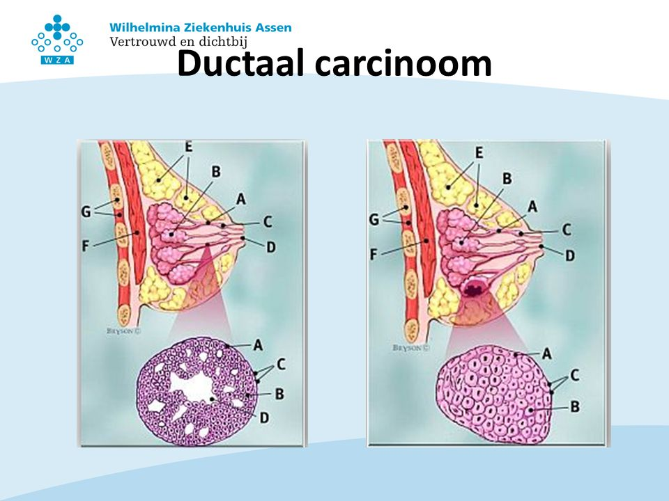 Ductaal carcinoom