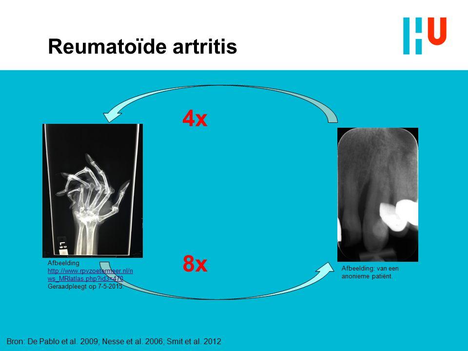 4x 8x Reumatoïde artritis xxxxxxxxxxxxxxx 4/28/2017 Tekst: